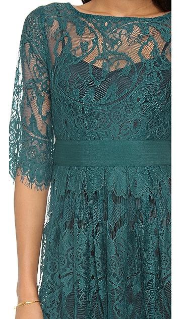 BB Dakota Scallop Lace Dress