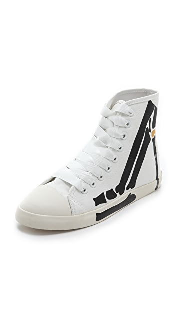 BE & D Skeleton High Top Sneakers