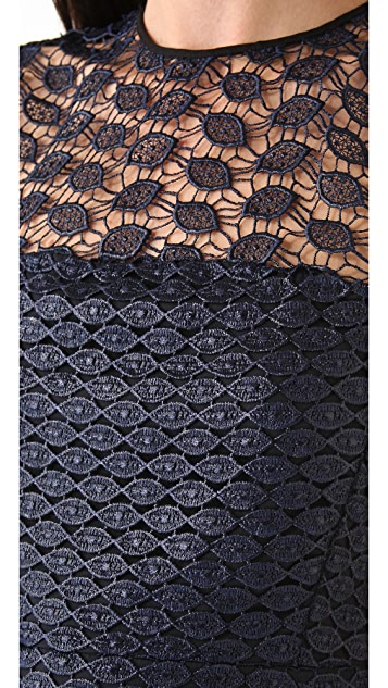 Diane von Furstenberg Kinchu Lace Dress