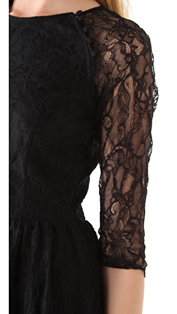 Dolce Vita Alondra Lace Dress