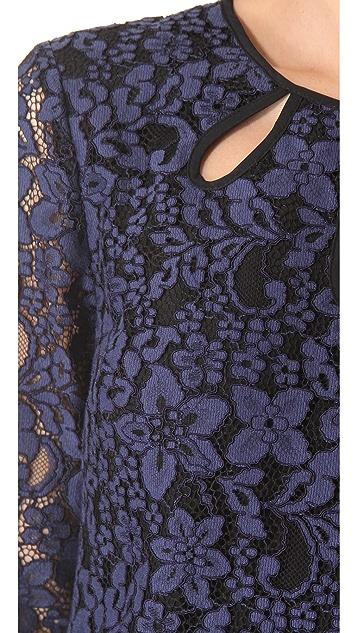 Juicy Couture Contrast Lace Dress