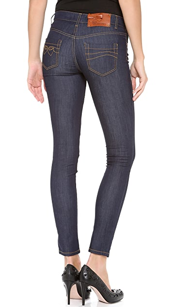 RED Valentino Skinny Stretch Jeans