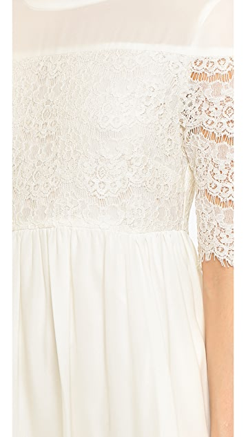 WAYF Lace Trim Babydoll Dress