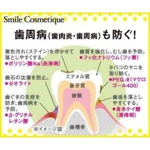 歯周病(歯肉炎・歯周病)も防ぐ