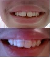 Orthodontic Gapped Teeth Bands