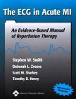 The ECG in Acute MI: An Evidence Based Manual of Reperfusion Therapy