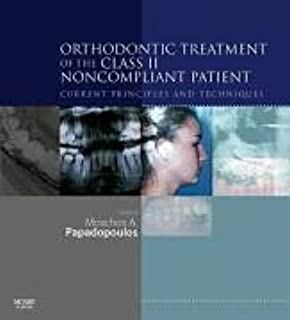 Orthodontic Treatment of the Class II Non-Compliant Patient: Current Principles and Techniques