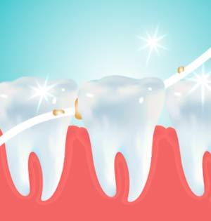 ホワイトエッセンスフロス歯科用クロルヘキシジン配合50メートルクロルフロス50