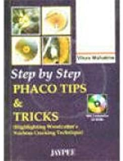 Best phaco step by step Reviews
