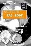 Fundamentos tac body de Richard Webb (28 may 2012) Tapa blanda
