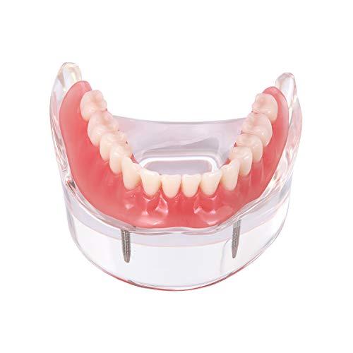 AZDENT Dental Implant Teeth Model Overdenture Restoration with 2 Implants Lower Demo Dentist Standard Pathological Removable Tooth Teaching Model