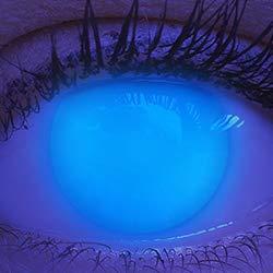 Farbige UV Kontaktlinsen 1 Paar Blaue Electric Blue Schwarzlicht Glow Neon Farblinsen. Jahreslinsen Topqualität zu Halloween, Fasching, Fastnacht, Karneval inkl. Kontaktlinsenbehälter - Ohne Stärke