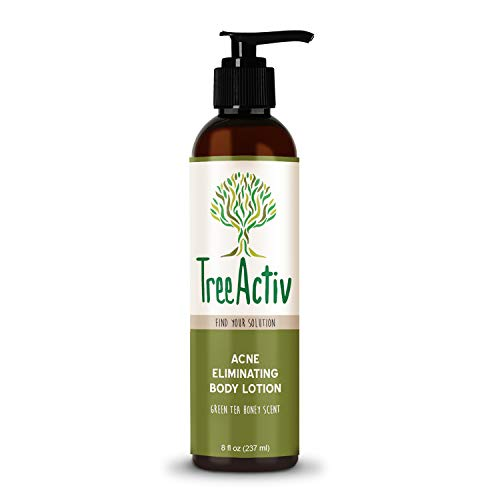 TreeActiv Acne Eliminating Body Lotion 8 fl oz, Clears Body, Back, Butt and Shoulder Acne, Anti-Acne Moisturizer, Prevents Future Breakouts, Green Tea and Honey Scent