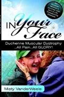 muscular dystrophy shop