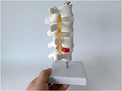 Lendenwirbelmodell - Bildungsmodell Anatomie des Menschlichen Körpers Replik Modell Der Lendenwirbelsäule - PVC-Material Bandscheibenvorfallmodell Für Den Naturwissenschaftlichen Unterricht Studienan
