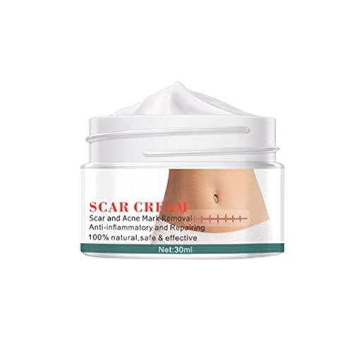 Littekencrème, littekencrème Acne en littekenverwijderingscrème Stretch Mark Cream voor huidverzorging