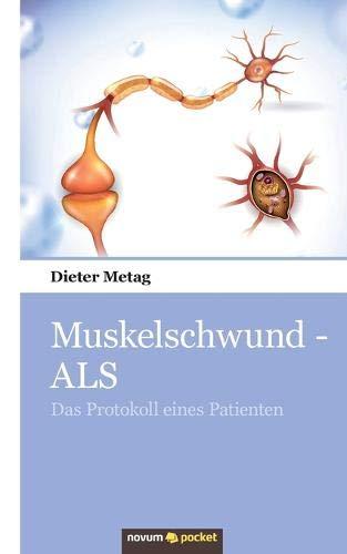 Muskelschwund - ALS: Das Protokoll eines Patienten