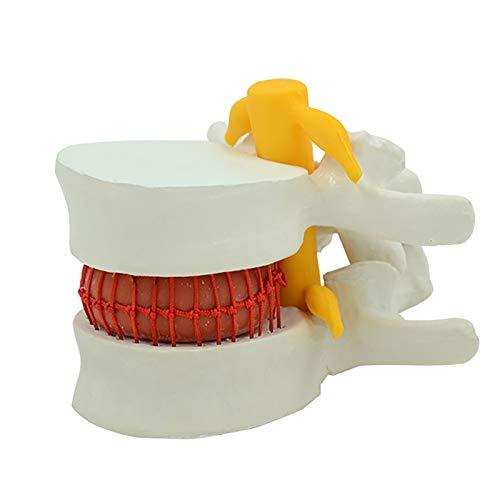 N \ A Modelo De Columna Vertebral De Hernia De Disco Lumbar, Modelo De Simulación De Demostración De Simulación De Compresión De Vértebras Grandes, Columna Vertebral Enferma Agrandada