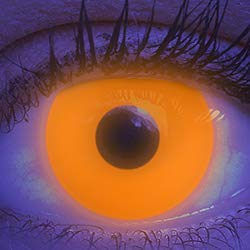 Farbige Kontaktlinsen 1 Paar Orange Schwarzlicht Glow UV Neon Farblinsen. Jahreslinsen Topqualität zu Halloween, Fasching, Fastnacht, Karneval inkl. Kontaktlinsenbehälter - Ohne Stärke