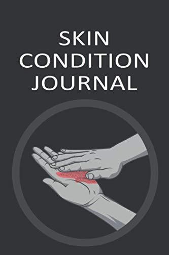 Skin Condition Journal: Blank Notebook For Tracking Skin Health Condition | Skin Problems Management & Treatment Log Book | Acne, Psoriasis, Eczema Logbook
