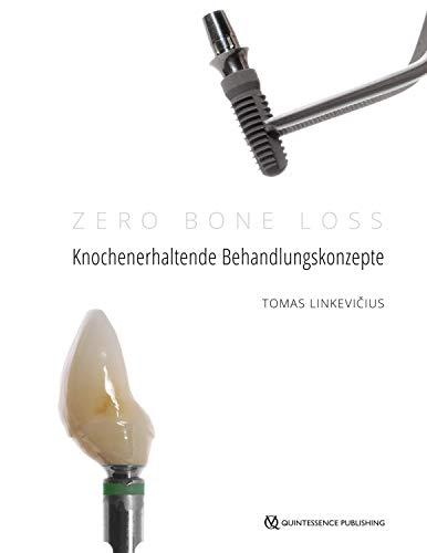 Zero Bone Loss: Knochenerhaltende Behandlungskonzepte (German Edition)