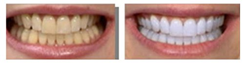 Strongest 35-percent 80 Ml Teeth Whitening Gels - Made in USA and has 240 Applications