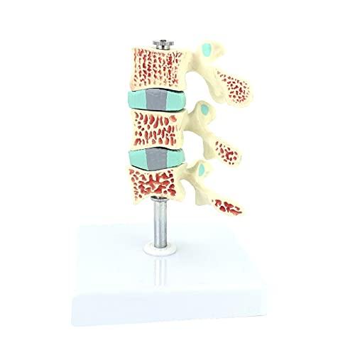 XINXI-YW Modelos anatómicos Modelo De Osteópisis Modelo Espinal Modelo Espinal Modelo Esqueleto Modelo Esqueleto Modelo