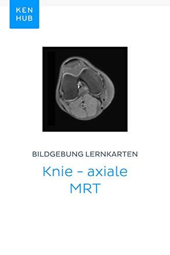 Bildgebung Lernkarten: Knie - axiale MRT: Lerne alle Knochen, Ligamente, Muskeln, MRT, Arterien, Nerven und Venen unterwegs (Kenhub Lernkarten 14)