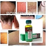 1 Bottle X Zema Lotion for Dermatitis Eczema Ringworm Itching Jock Itch Foot 15ml (Salicylic Acid 12% Dermatitis Eczematoid Psoriasis Eczema Treatment.)
