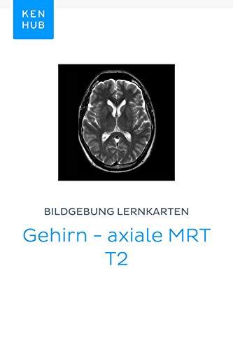 Bildgebung Lernkarten: Gehirn - axiale MRT T2: Lerne alle Knochen, Nerven, Organe, MRT, Arterien und Muskeln unterwegs (Kenhub Lernkarten 15)