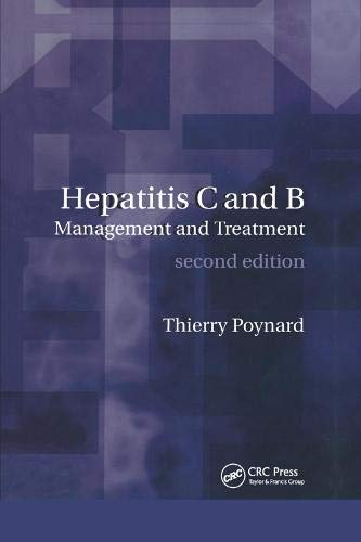 Hepatitis B and C: Management and Treatment