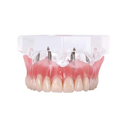 AZDENT Dental Implant Teeth Model Upper Overdenture Restoration with 4 Implants Demo Dentist Standard Pathological Removable Tooth Teaching Model