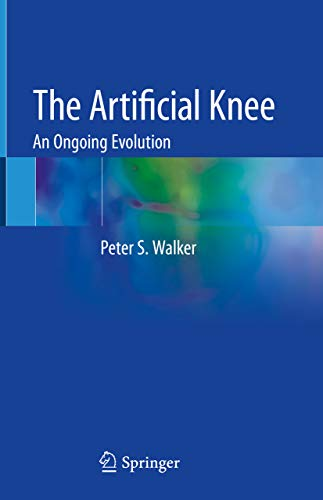 The Artificial Knee: An Ongoing Evolution (English Edition)