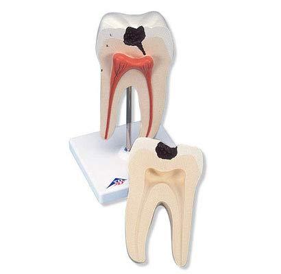 3B Scientific menselijke anatomie - onderste tweekwortelige molar met ruiten, 2-delig - 3B Smart Anatomy