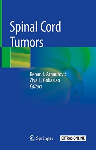 Spinal Cord Tumors (English Edition)