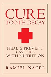 Cure Tooth Decay: Heal and Prevent Cavities with Nutrition