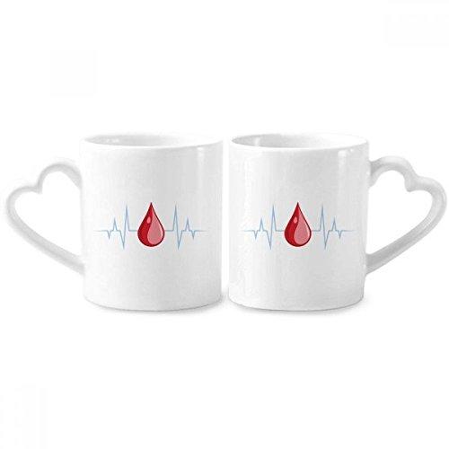 DIYthinker Pareja diseño Modelo de Sangre electrocardiograma Tazas de cerámica Regalo de la manija 12 oz corazón Amante Copas