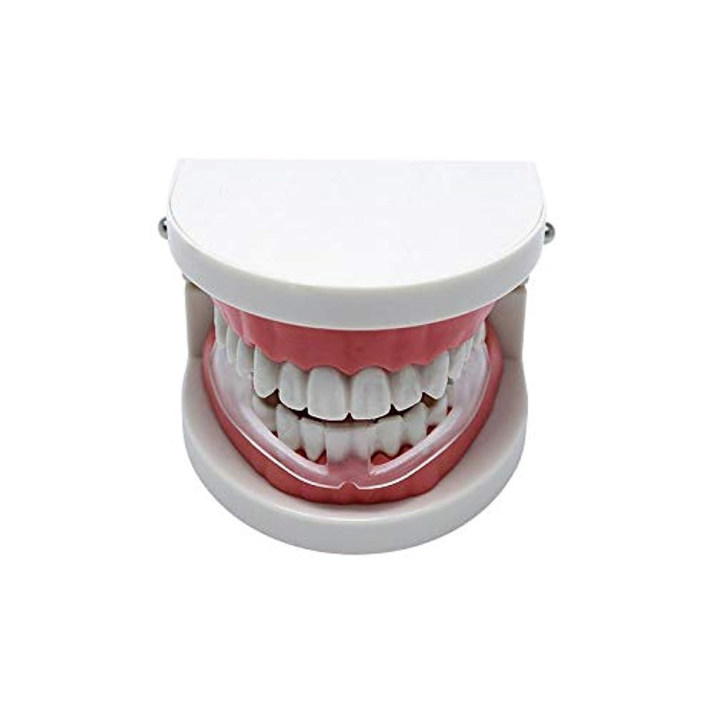 ビルマ受信交響曲NOTE マウスガードストップ歯研ぎ止めいびき歯ぎしり睡眠補助具いびきをかく