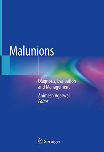 Malunions: Diagnosis, Evaluation and Management (English Edition)