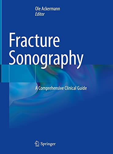 Fracture Sonography: A Comprehensive Clinical Guide (English Edition)