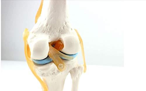 XIOFYA Palabra Clave 1pc: Enseñanza ortopédica;Modelo de Rodilla;Modelo de ligamento de Rodilla;