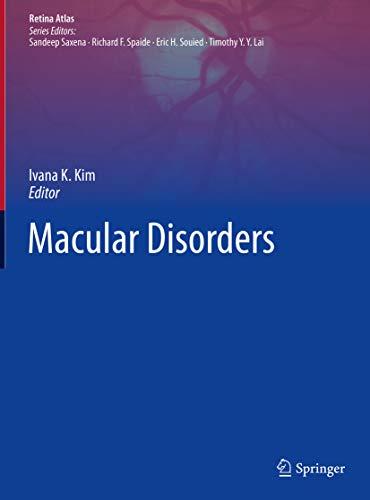 Macular Disorders (Retina Atlas) (English Edition)