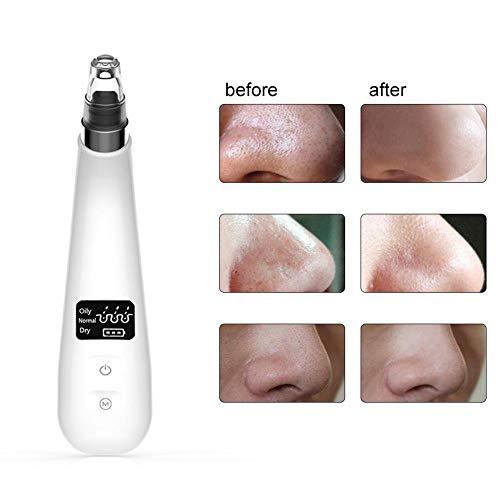 Gesichtsporenreiniger Werkzeuge Mitesser Makel Entferner Pore Vakuum Elektrische Akne Comedone Extractor Kit USB Wiederaufladbare LED-Anzeige Mikrodermabrasion Geräte