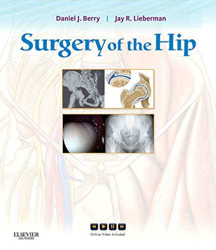 Surgery of the Hip E-Book: Expert Consult - Online and Print (English Edition)
