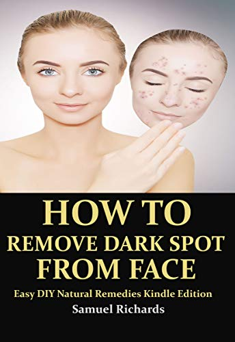 HOW TO REMOVE DARK SPOT FROM FACE: Easy DIY Natural Remedies Kindle Edition