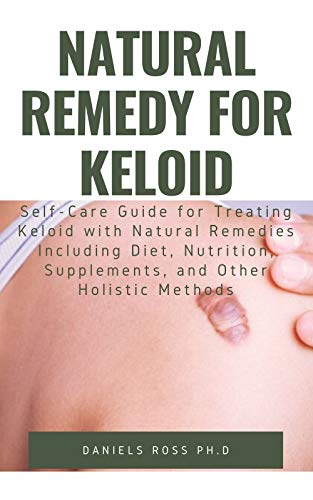 NATURAL REMEDY FOR KELOID: What Your Doctor Will Not Tell You and Secret of Living a Keloid Free Life (English Edition)
