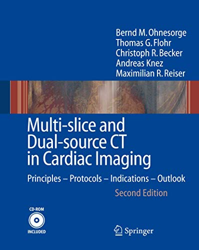 Multi-slice and Dual-source CT in Cardiac Imaging: Principles - Protocols - Indications - Outlook