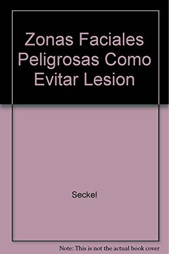 Zonas Faciales Peligrosas Como Evitar Lesion (Spanish Edition)