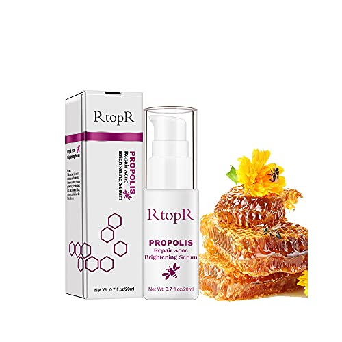 Clear Care Acne Behandeling Essence |Huidverzorging Gezichtsverlichting Clear Acne Pimple Oil Free Gel Behandeling