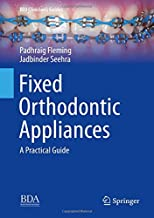 Fixed Orthodontic Appliances: A Practical Guide